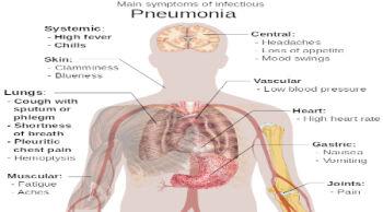 Πνευμονία: Συμπτώματα και αντιμετώπιση